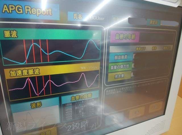 血管年齢測定器の結果画面その3